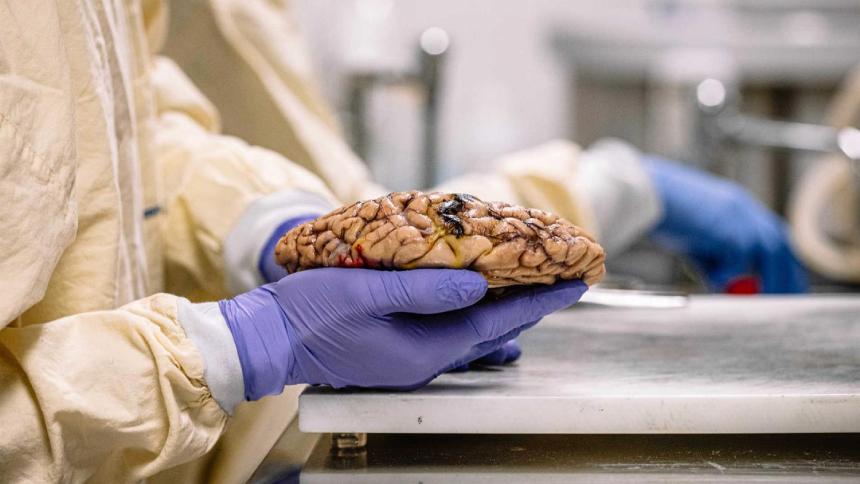 Banco Português de Cérebros 20200320
